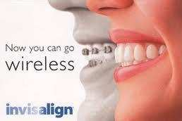 invisalign, service, ortho, dentist, teeth, mouth