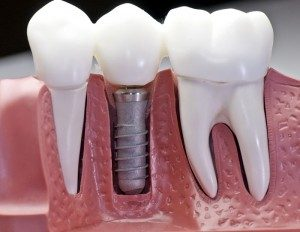 Implants that could feel like your real teeth!