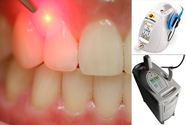 laser-services, Healthy Teeth, Family Dentistry