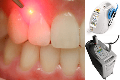 laser services, Dentist, Teeth, caring dentist