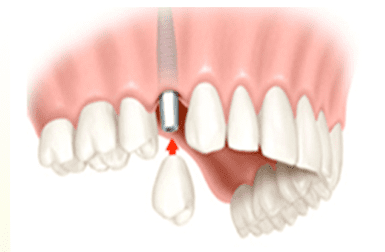 Dental Implant Replacing a Single Tooth