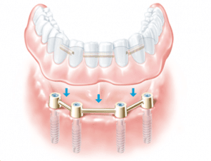 Image of an implanted-supported denture.