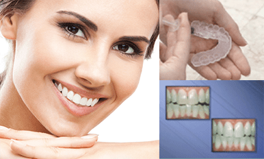 whitening services, caring dentist, whitening, teeth