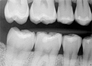 X-Ray, Bitewing, Family Dentist, Pediatric Dentist