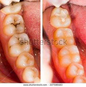 Are Cavities Contagious? 1